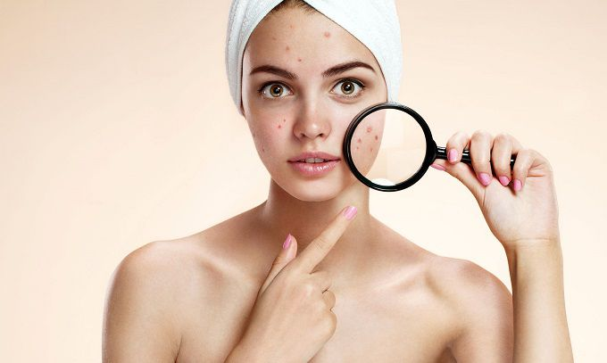 Acnes Treatment Tips: Don't Do Things