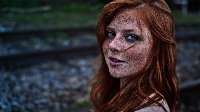 Freckles on Face: Natural Home Remedies for Freckles  Don't Let Freckles Remove Your Beauty.
