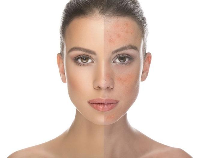 Acne Scar Healing Strategies for Sensitive Skin